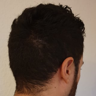 Alopecia Areata nach Behandlung mit Thymuskin / Alopecia areata after treatment with Thymuskin