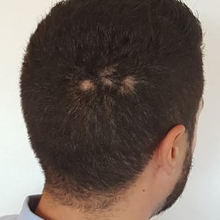 Alopecia Areata vor der Behandlung mir Thymuskin / Alopecia areata before treatment with Thymuskin