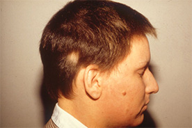 Alopecia Areata nach der Behandlung mit Thymuskin / Alopecia areata after treatment with Thymuskin