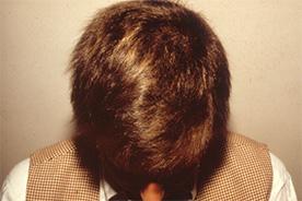 Alopecia Areata nach der Behandlung mit Thymuskin / Alopecia areata after treatment with Thymuskin