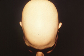 Alopecia Areata / Circular hair loss