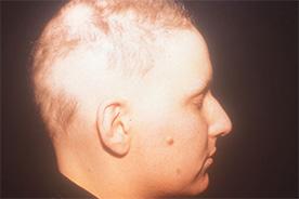 Alopecia Areata während der Behandlung mit Thymuskin / Alopecia areata during treatment with Thymuskin