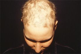 Alopecia Areata während der Behandlung mit Thymuskin / Alopecia areata during treatment with Thymuskin