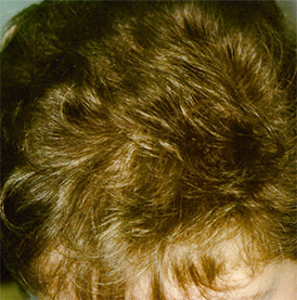 Diffuser Haarausfall nach der Behandlung mit Thymuskin / Alopecia diffusa after treatment with Thymuskin