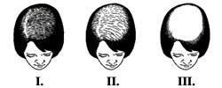 Alopecia Verlauf Frau / Alopecia progression female