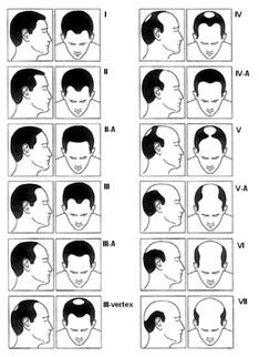 Haarausfall Verlauf Mann / Alopecia progression man