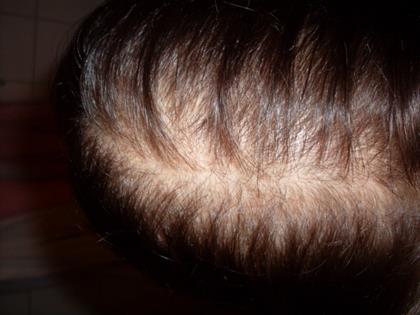Erblich bedingter Haarausfall / Hereditary hair loss