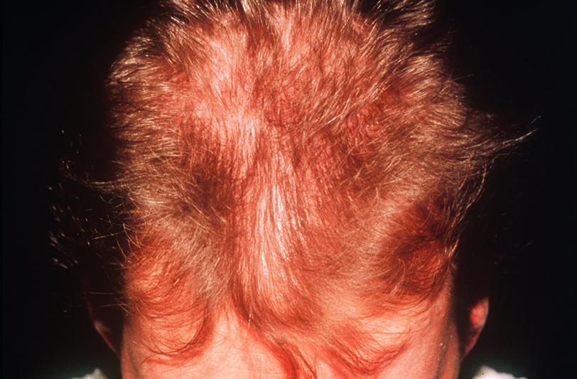 Diffuser Haarausfall / Diffuse hair loss