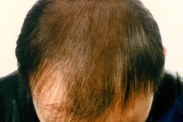 Erblich bedingter Haarausfall Mann / Hereditary hair loss man