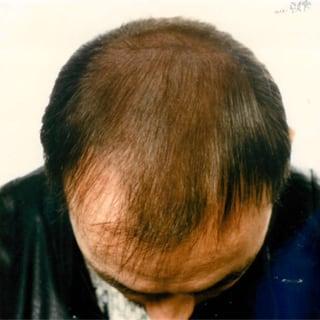 Erblich bedingter Haarausfall nach Behandlung mit Thymuskin / Hereditary hair loss after treatment with Thymuskin
