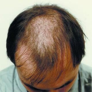 Erblich bedingter Haarausfall vor der Behandlung / Hereditary hair loss before treatment