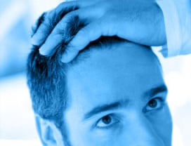 Erblich bedingter Haarausfall / Hereditary hair loss