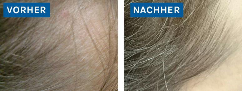 Schütteres Haar (Geheimratsecken) / Thinning hair