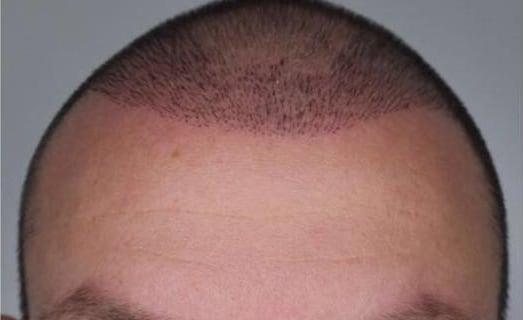 Haarwachstum nach Haartransplantation
